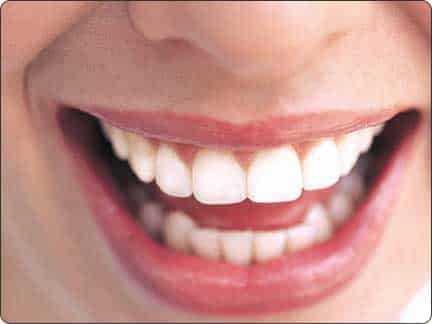 Five Foods That Can Stain Your Teeth