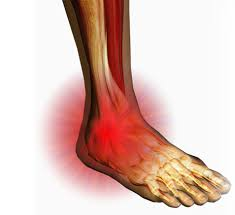 tips on dealing with ankle pain