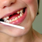 The Worst Foods for Your Teeth . . . And Healthy Alternatives
