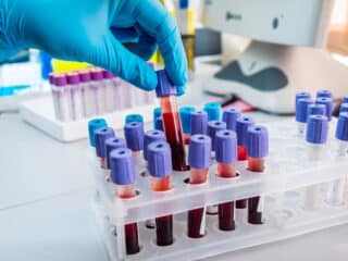 Common Problems Which Are Diagnosed By Blood Tests
